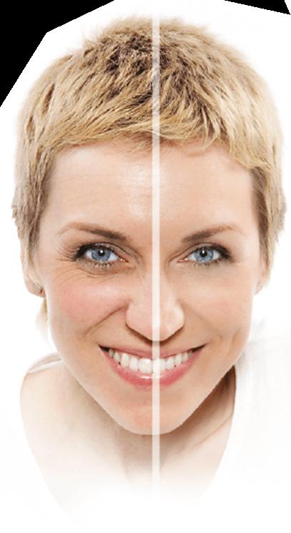 Skinception Kollagen Intensiv